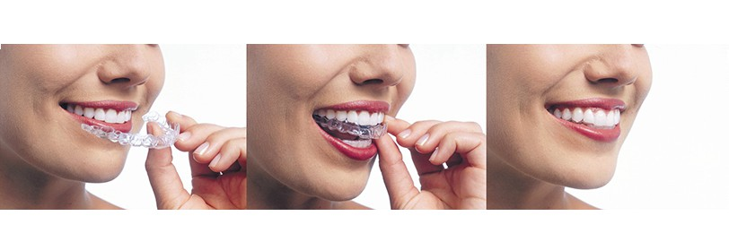 niềng răng invisalign trong suốt