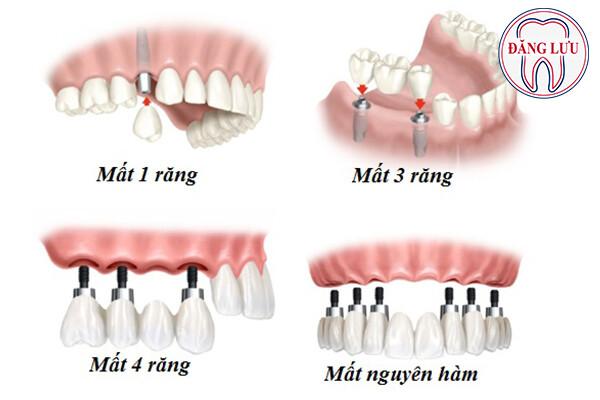 những phương pháp trồng răng giả cố định