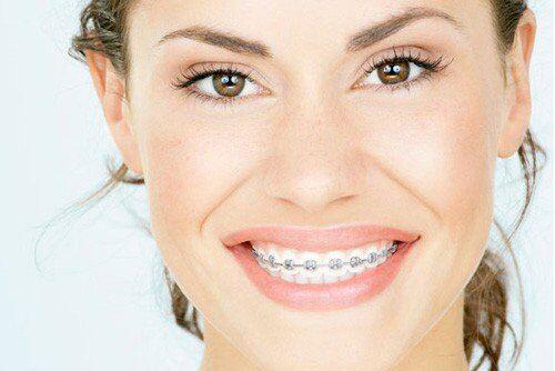 2 cách khắc phục răng hô hiệu quả nhất