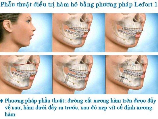 2 cách khắc phục răng hô với hiệu quả cao nhất