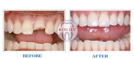 quy trinh cấy ghép răng implant cho răng cửa