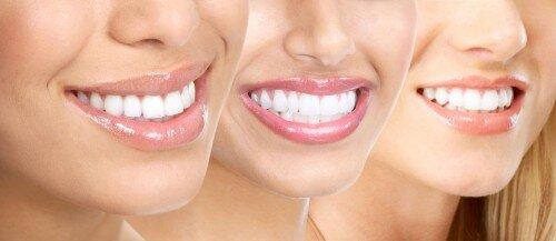 4 cách làm trắng răng hiệu quả tại nhà
