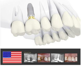 Ai Nên Làm Implant ?