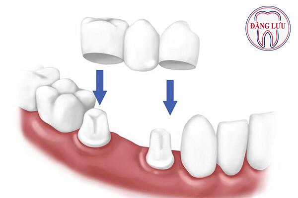 Cấy ghép implant răng hàm như thế nào?