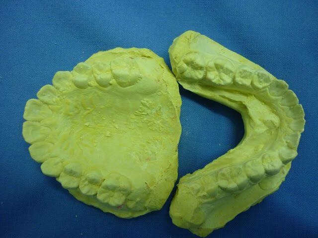 Kết quả hình ảnh cho mẫu răng thạch cao