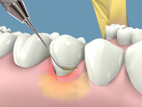 Tại sao phải lấy cao răng ?