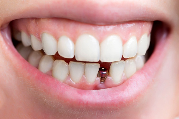 Implant sử dụng được bao lâu