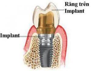 Làm thế nào để tiết kiệm khi cấy ghép implant nha khoa