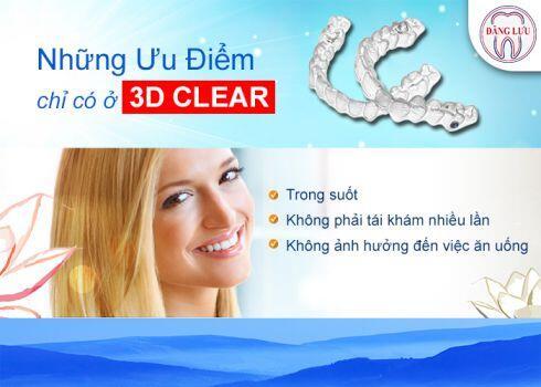miễn phí niềng răng 3d clear