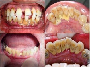 Răng Sậm Màu Và Cách Cải Thiện