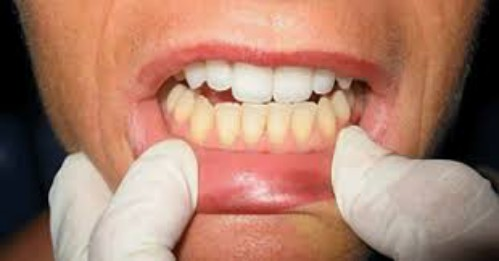 Baking soda có an toàn cho sức khỏe răng miệng