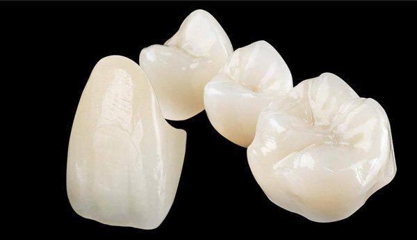 Bạn biết gì về bọc răng sứ Cercon?