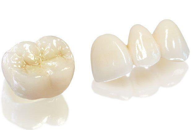 Bạn biết gì về bọc răng sứ Zirconia?