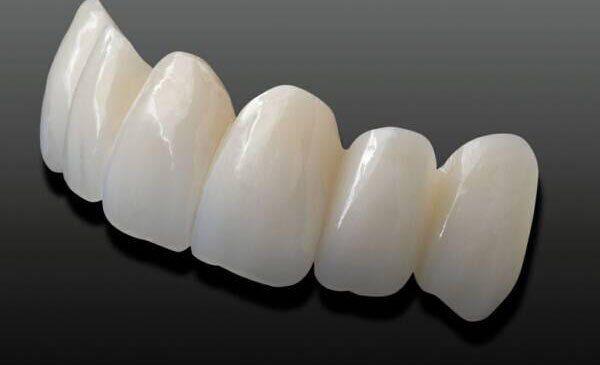 Bạn biết gì về răng sứ Cercon Ht?