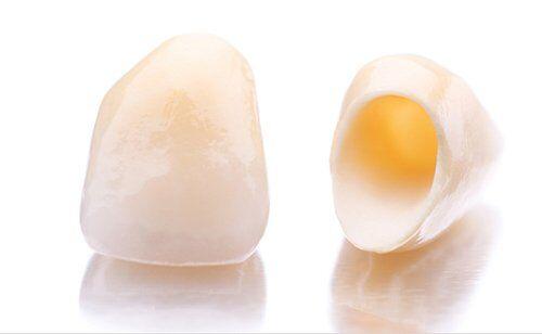 Bạn biết gì về răng sứ cercon