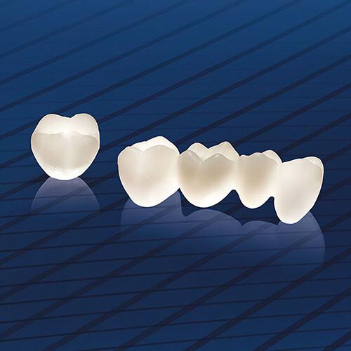 Răng sứ cao cấp giá bao nhiêu? 1