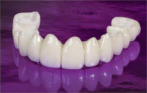 bảng giá các loại răng sứ cao cấp
