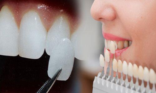 Có nên bọc răng sứ thẩm mỹ không? 3