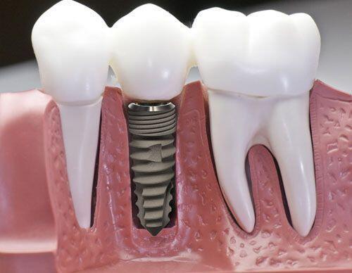Bảo dưỡng implant nha khoa