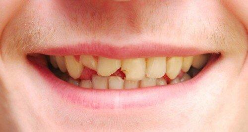 Các dạng chấn thương răng