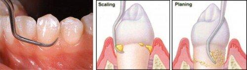 Bảo tồn răng bị chấn thương