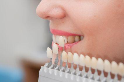 Tẩy trắng răng có nguy hiểm không ?