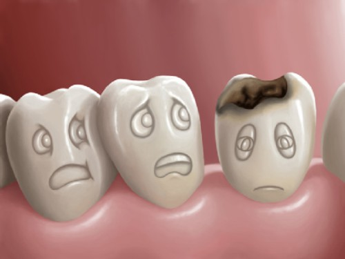 Bệnh lý của răng