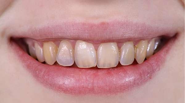 bệnh mòn răng cách phòng và điều trị
