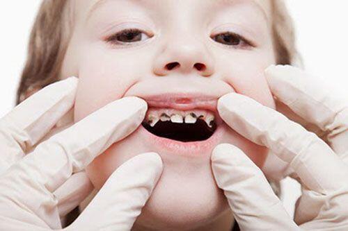 Dấu hiệu bệnh viêm nướu ở trẻ em