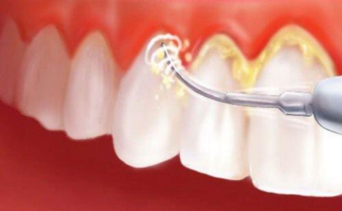 Bệnh răng miệng và những cảnh báo về sức khỏe