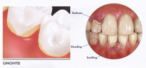Bị viêm chân răng có nguy hiểm không ?