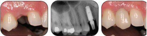 Biến chứng do cắm Implant không đúng vị trí