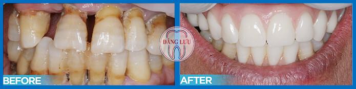 Bọc răng sứ có đau không nhỉ?