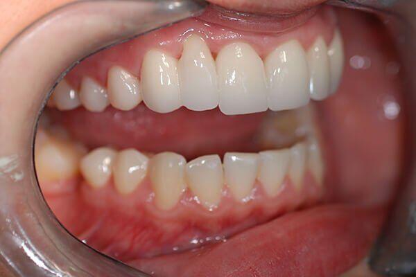 bọc răng sứ nguyên hàm bao nhiêu tiền