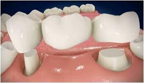 Bọc răng sứ bắc cầu là gì?