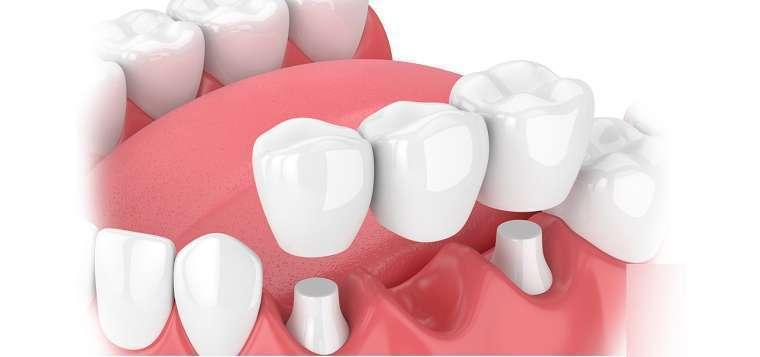 bọc răng sứ bắc cầu là gì