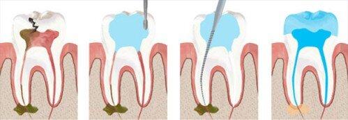Bọc răng sứ bị nhức là tại sao ?