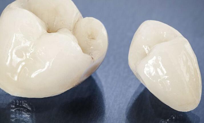 quy trình làm mão răng sứ Cercon HT như thế nào