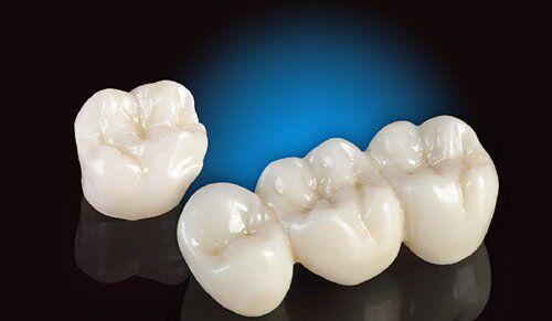 Bọc răng sứ cercon bao nhiêu tiền