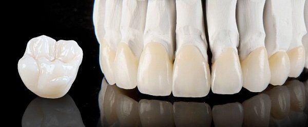 Bọc răng sứ Cercon chất lượng cao ở HCM