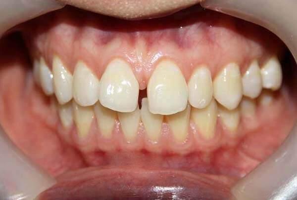 Bọc răng sứ Cercon cho răng thưa có hiệu quả không?