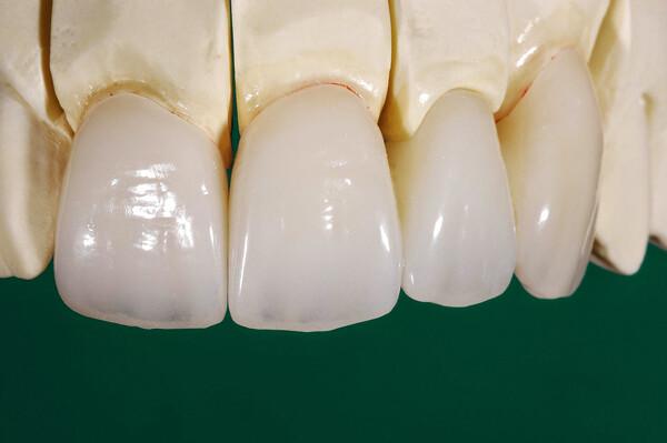 Bọc răng sứ Cercon có lợi ích gì?