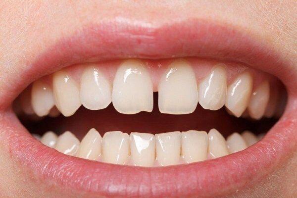 Bọc răng sứ Cercon HT cho răng thưa có hiệu quả không?