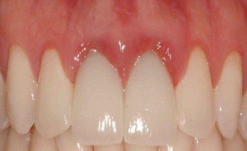 Bọc răng sứ Cercon HT có đau nướu không?
