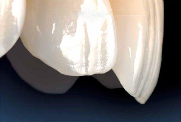 Bọc răng sứ Cercon HT có ê buốt không?