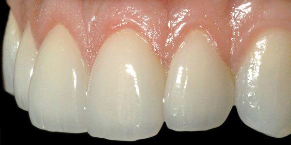 Bọc răng sứ Cercon HT có đẹp không?