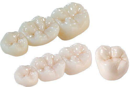Bọc răng sứ Cercon HT được thực hiện ra sao?