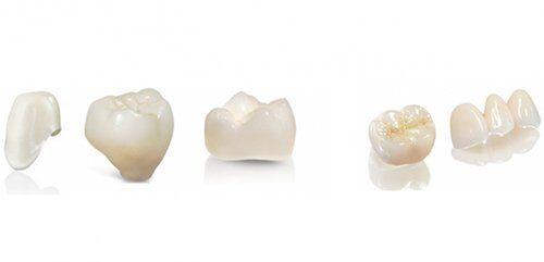 Bọc răng sứ Cercon HT giá bao nhiêu tiền?