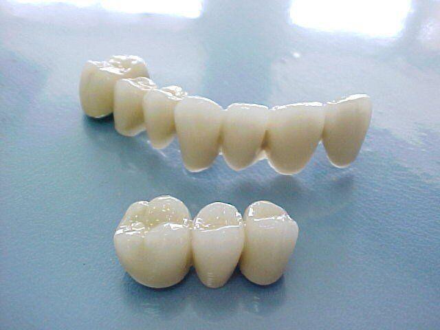 Bọc răng sứ Cercon HT uy tín quận 5