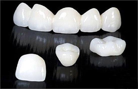 Trồng răng sứ Cercon ở đâu tốt an toàn và hiệu quả?